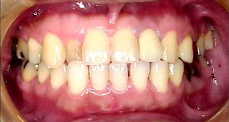 上部構造合着(歯が入ります。)